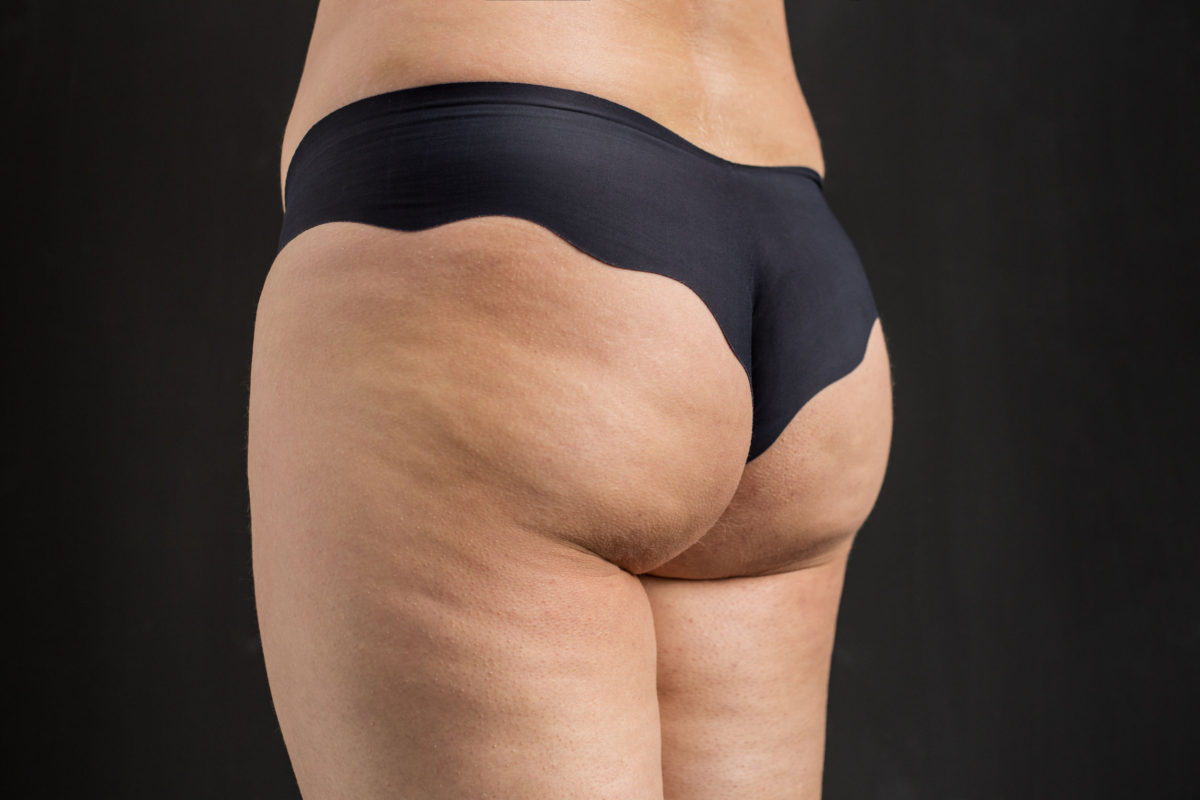 женские задницы с целлюлитом фотографии - 5